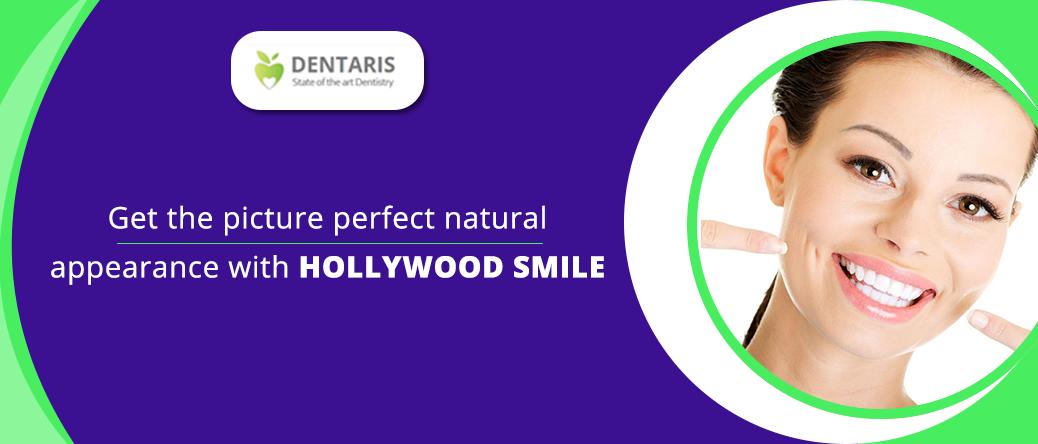 hollywood-smile